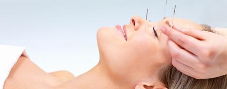 Agopuntura Estetica